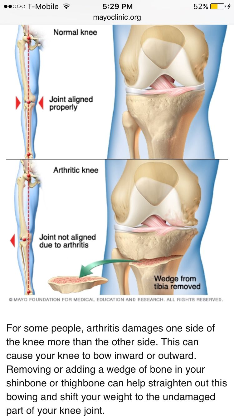 Tibial Plateau Fractures - Physiopedia | Tibia plateau fracture ...
