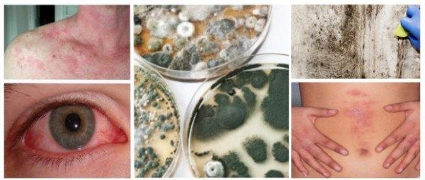 17 Signs And Symptoms Of Mold Exposure Sickness That Should Not Be Ignoredyou May Think