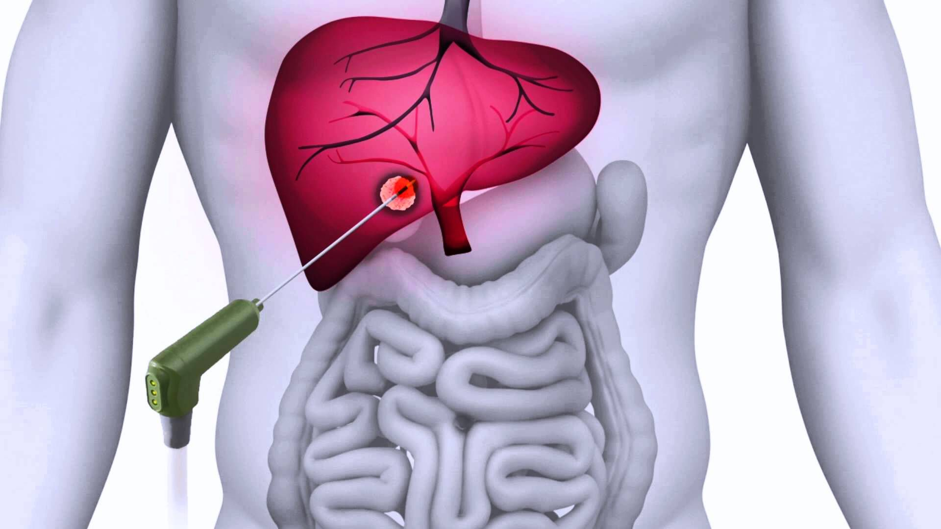 Europe Tumor Ablation Market Industry Research Market Research Research Report