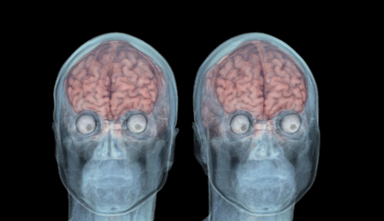 MRI Cerebro.   Anatomía Humana   Pinterest   Anatomía humana y Anatomía