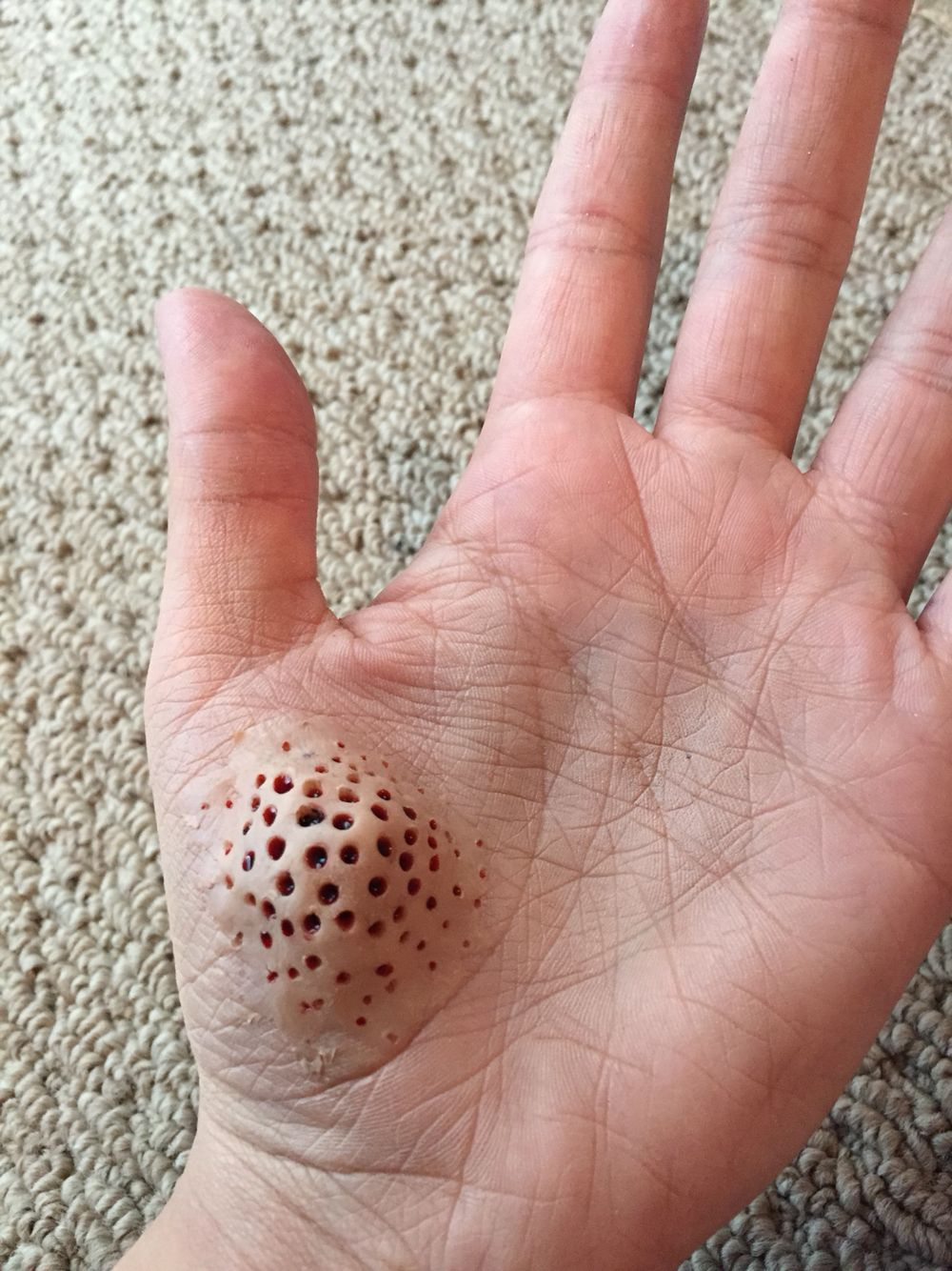 Trypophobia: fear of holes.-----I'm really getting