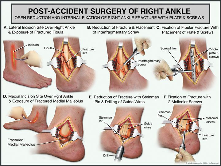 Post Accident Surgery Of The Right Ankle Everything Orthopaedic