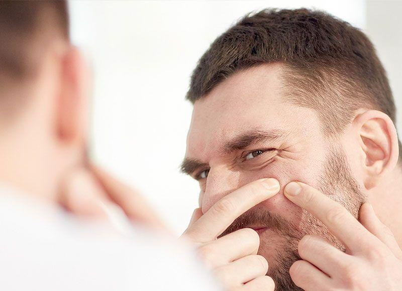 Cómo Quitar Los Granos De La Cara En Hombres Como Quitar Granos Como Quitar Como Quitar El Acne