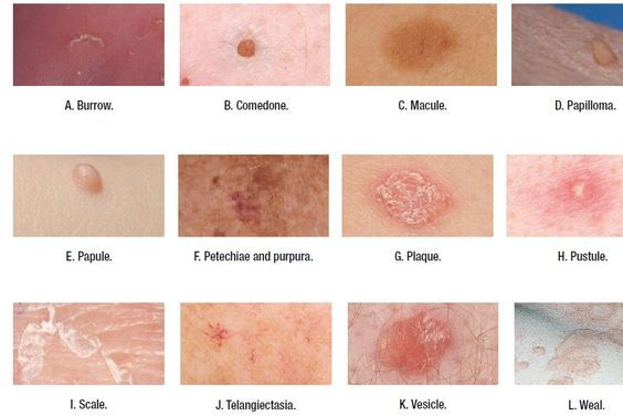 Types Of Skin Lesions Medical Addicts Terms Used To Describe
