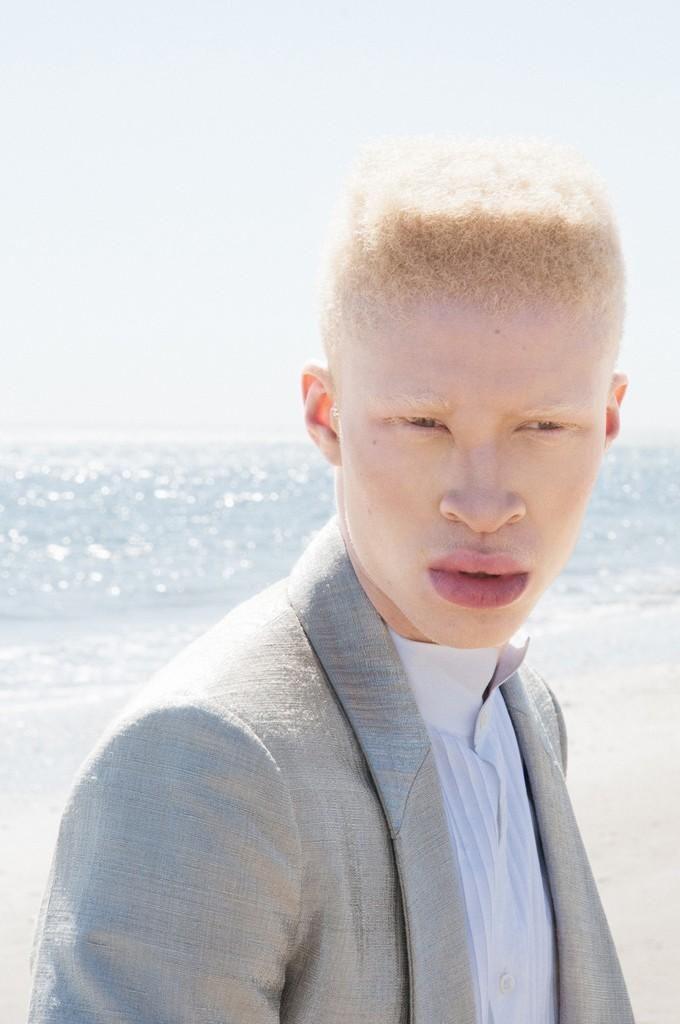 """Albino Model Fashion Shaun Ross. *The term """"albino"""" comes ..."""