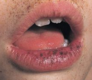 Black Spots On Lips Www Healtreatcure Org Pinterest Blood