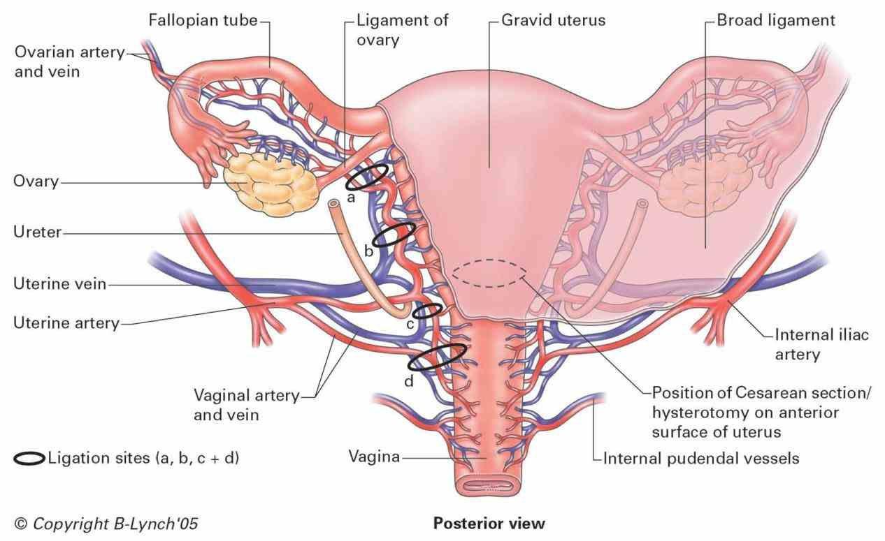 Internal Iliac Artery Mnemonic Human Anatomy Study Pinterest