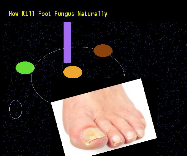 How kill foot fungus naturally - Nail Fungus Remedy. You have nothing to lose! Visit Site Now
