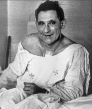 First Heart Transplant: December 3, 1967, 53-year-old Lewis Washkansky. The  surgery was a success but 18 days after the operation, Washkansky died of  double ...