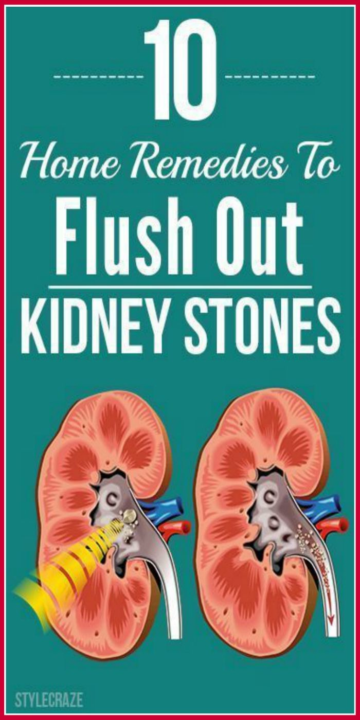 Communication on this topic: How To Dissolve Kidney Stones Naturally Without , how-to-dissolve-kidney-stones-naturally-without/