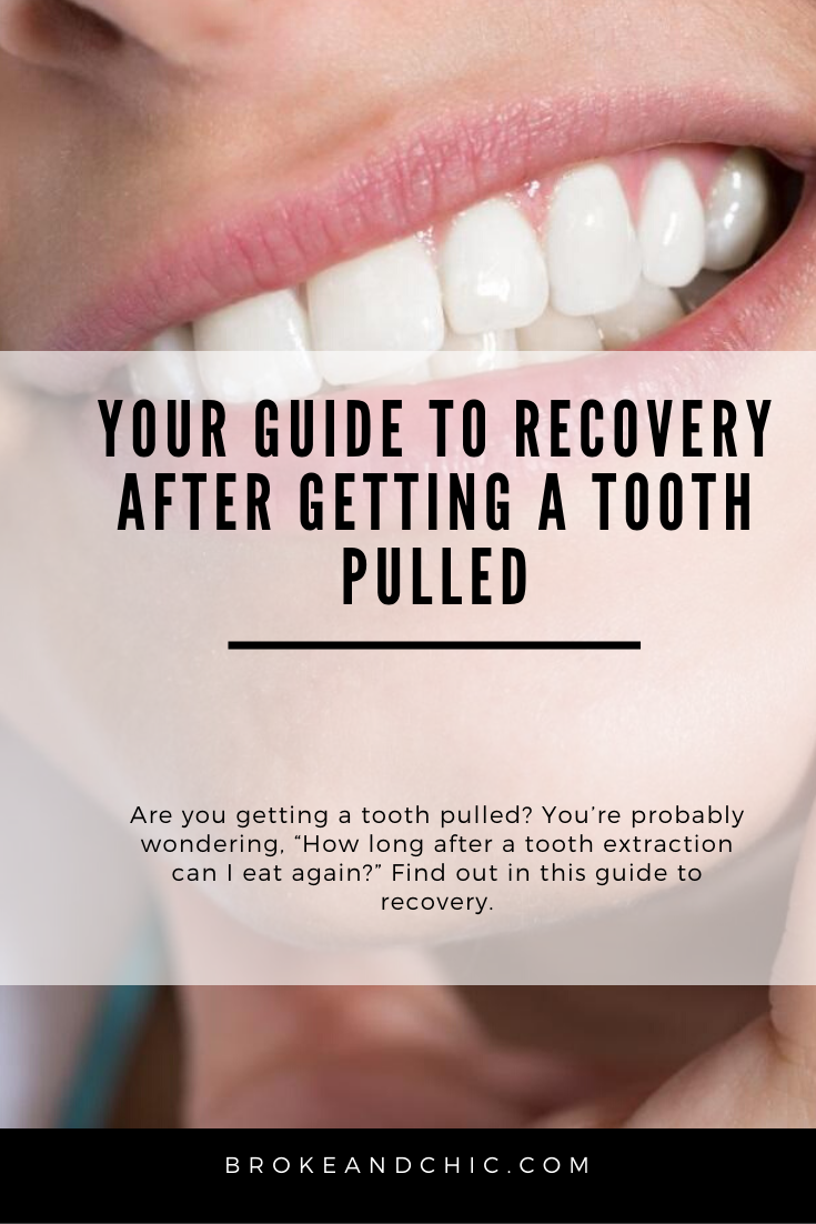 Your Guide to Recovery After Getting a Tooth Pulled in