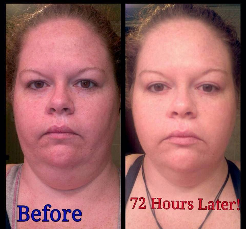 Pin by Beth Aaberg Huebner on Before and After It Works