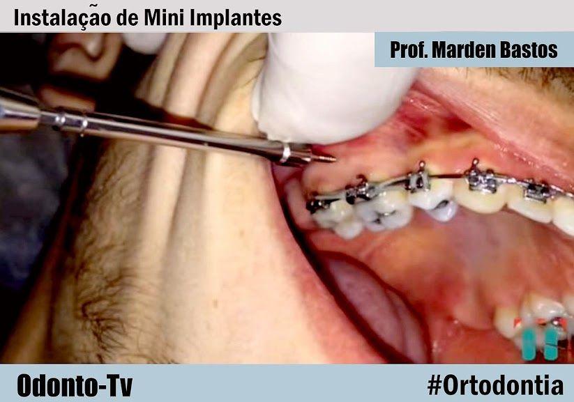 Ortodontia Instalacao De Mini Implantes Prof Marden Bastos