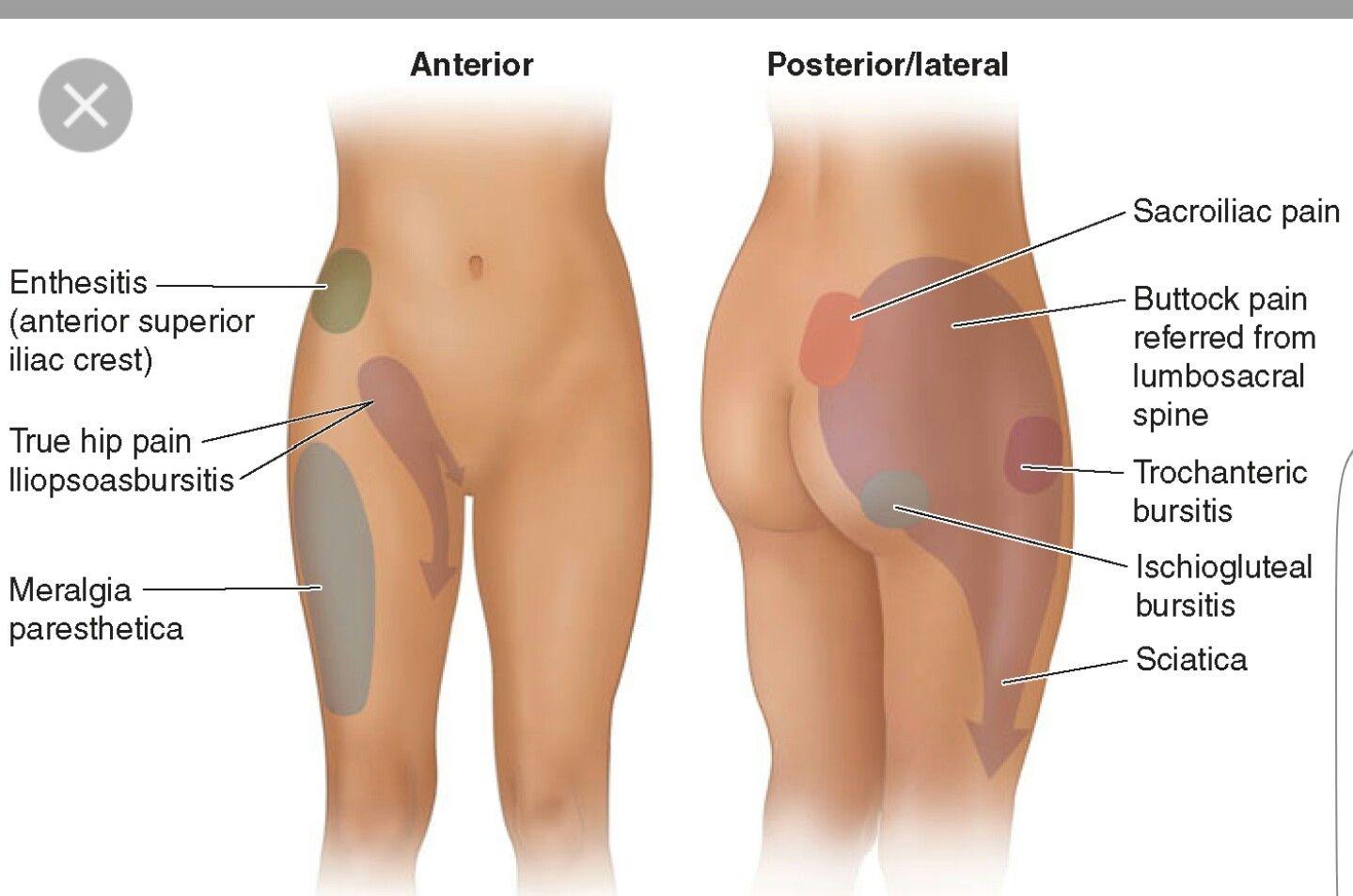 dolor entre pierna y cadera