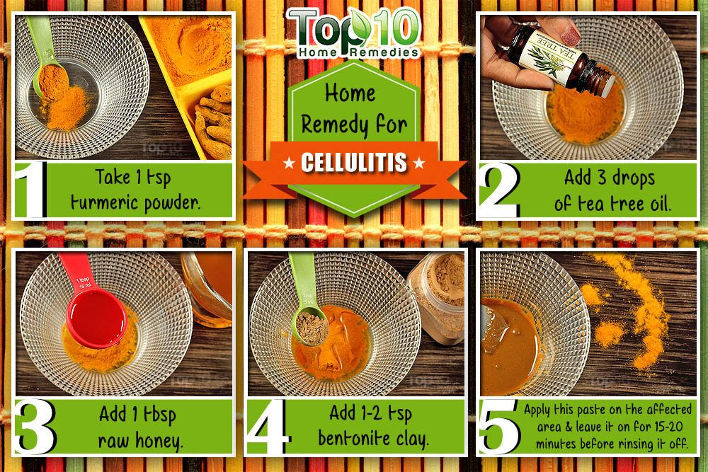 Home Remedies for Cellulitis | crafts | Top 10 home remedies