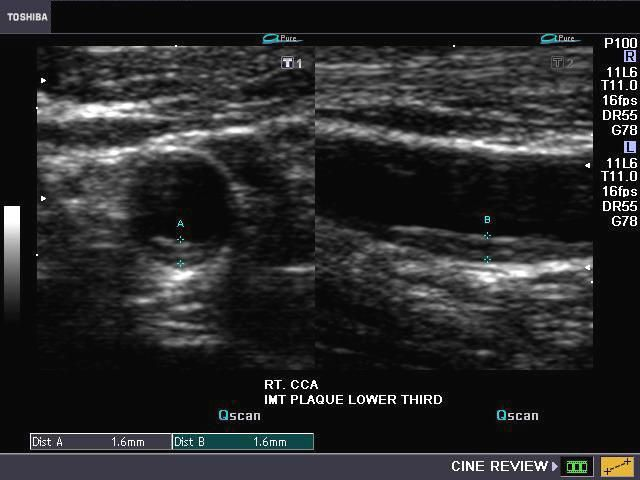 The B Mode Ultrasound Images Of The Right Common Carotid Artery Show
