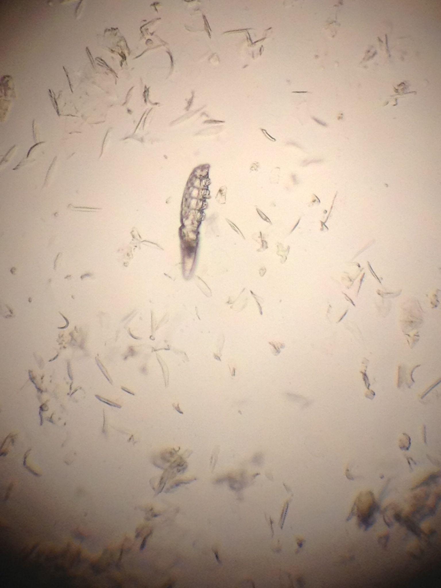 Demodex under the microscope, thanks Dr. Vega for sharing