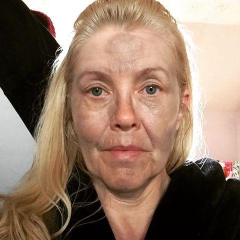 Magic Wand Facial Massage