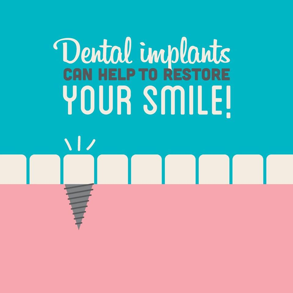Dental Fact: 69% of adults, ages 35-44, have lost at least one permanent tooth. Did you know dental implants can help to restore your smile? #dentalfacts