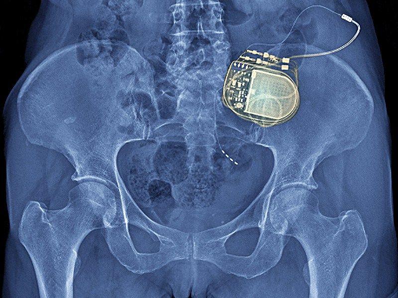 Nevro touts 2-year data on Senza spinal cord stim   Spinal cord ...