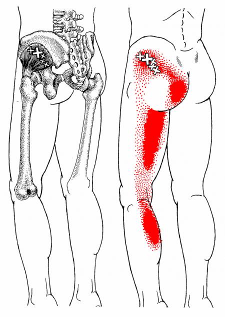 Gluteus minimus trigger point