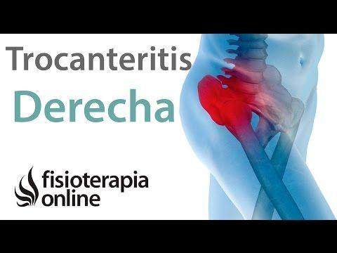 Tratamiento De La Trocanteritis Derecha Fisioterapia Online Trocanteritis Dolor De Cadera Flexores De Cadera
