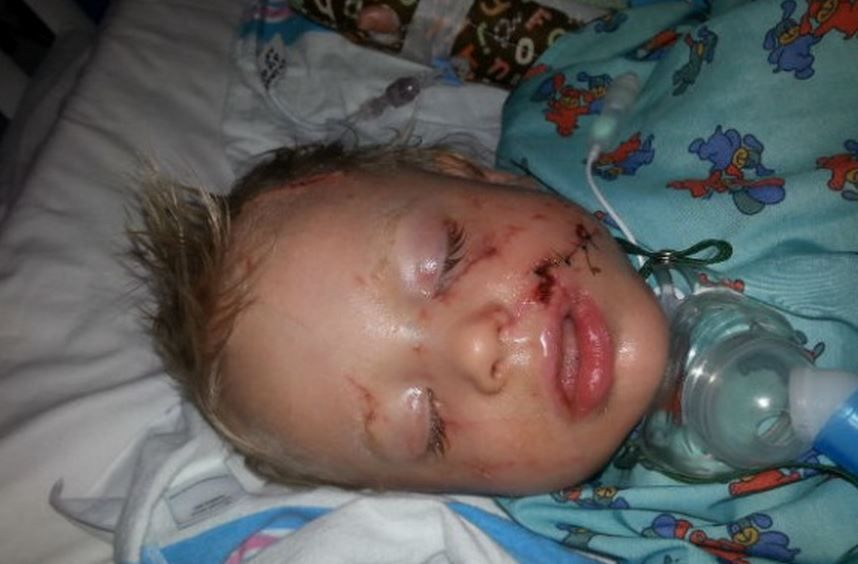 A 20monthold Fayetteville boy who was mauled by one his