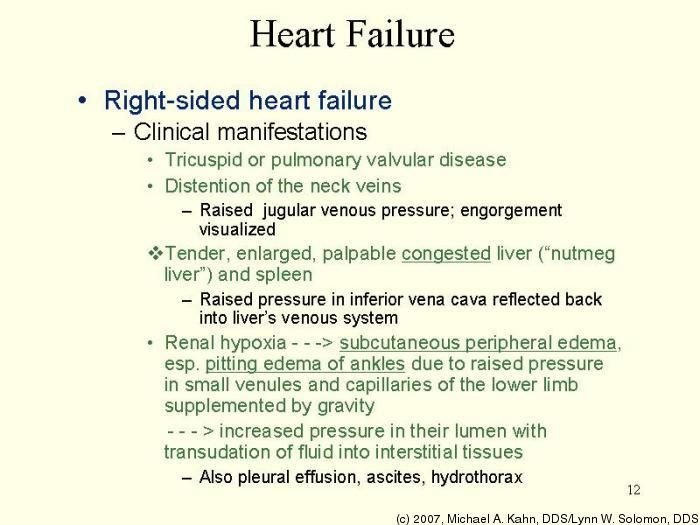 Right-sided Heart Failure Medical Pinterest Heart failure