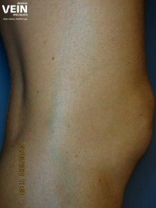Laser Removal Systems Like The Cutera Xeo Coolglide Offer A Needle Less Option For Removing Unsightly Laser Vein Removal Laser Treatment Spider Vein Treatment