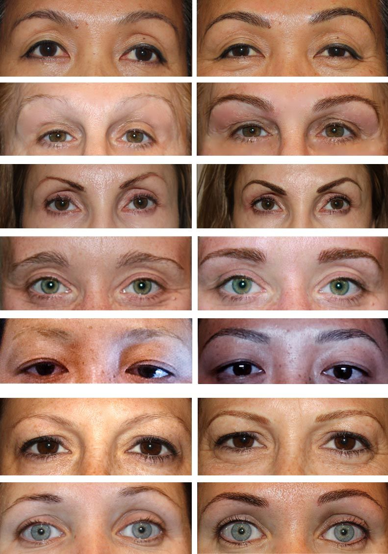 Before After Permanent Eyebrows Hair And Nail Salon Makeup
