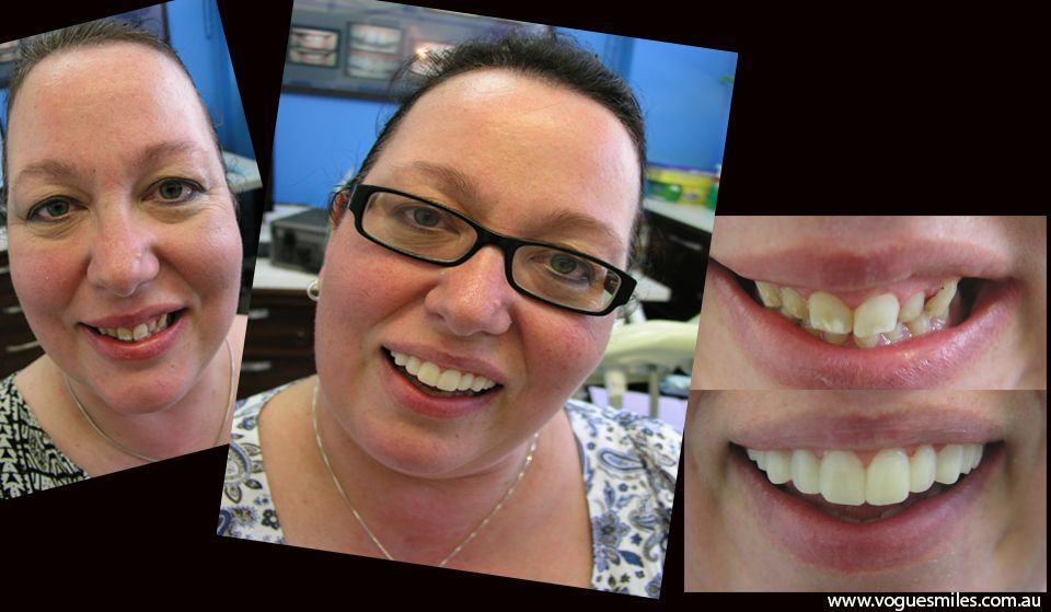 Pin on Most affordable cosmetic dentistry procedures and
