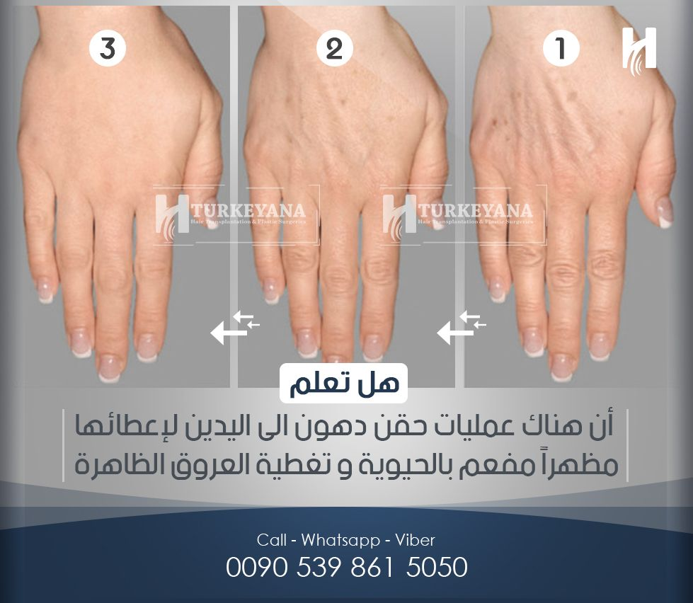 Pin By Um Omar On الصحة واللياقة Plastic Surgery Beauty Surgery