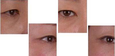 Pin by Yasmee Bruha on double eyelid surgery | Eyelid