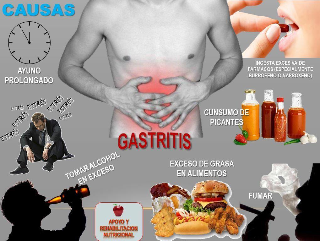 =GASTRITIS=  La gastritis es una inflamación de la mucosa gástrica, que es la capa de células que reviste el estómago por dentro protegiéndolo de la acidez de los jugos gástricos.  CAUSAS.  - Ayuno prolongado - Consumo excesivo de grasas - Alcoholismo - Fumar - Fármacos como: ibuprofeno o naproxeno - Estrés - Abuso en el consumo de picantes procesados