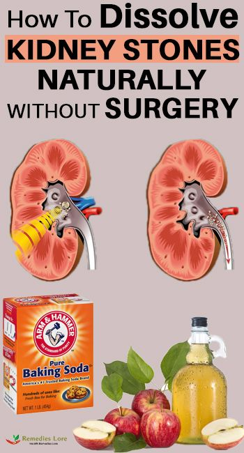 How To Dissolve Kidney Stones Naturally Without Surgery Natural