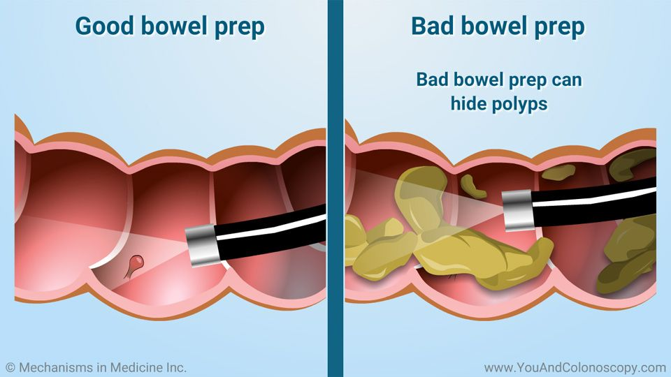 What Is A Colonoscopy And How Do I Prepare For It Colonoscopy Clear Liquid Diet Colonoscopy Clear Liquid Diet