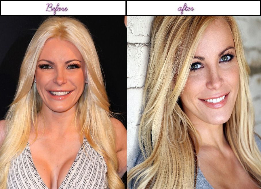 Does Crystal Harris Plastic Surgery Was A Mystery Check It Yoru Self Pictures - http://www.afterbeforeplasticsurgery.com/does-crystal-harris-plastic-surgery-was-a-mystery-check-it-yoru-self-pictures/