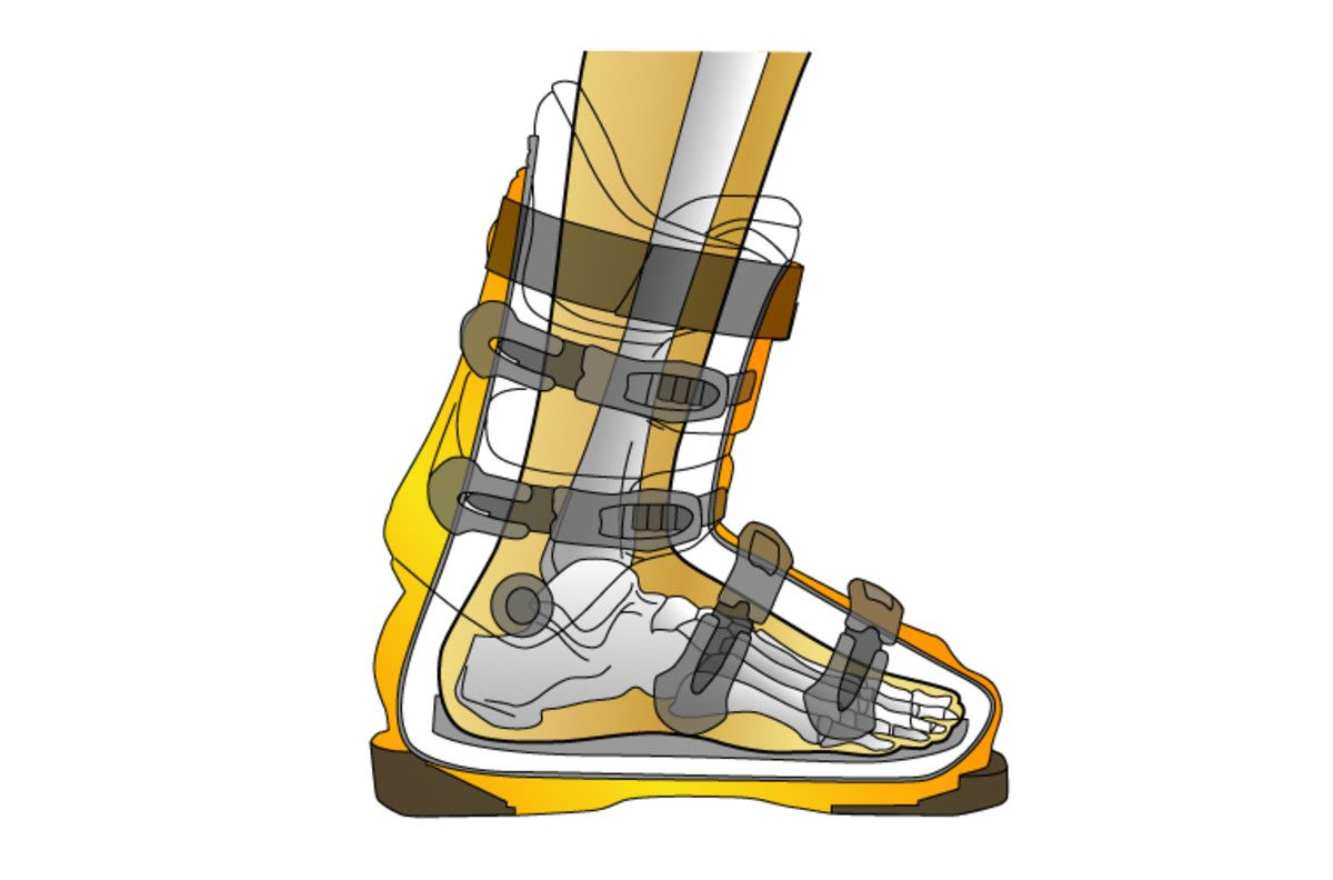 Getting the right boot fit is a common problem for skiers