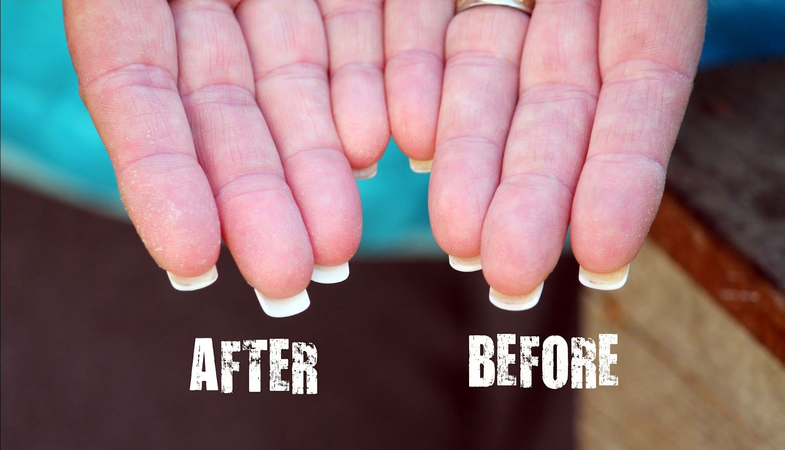 Cleaning Underneath Acrylic Nails Hydrogen Peroxide Baking Soda Make A Paste And Brush On Rinse How To Do Nails Clean Nails Acrylic Nails