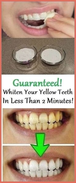 Guaranteed! Whiten your yellow teeth in less than 2 minutes! #teethwhitening