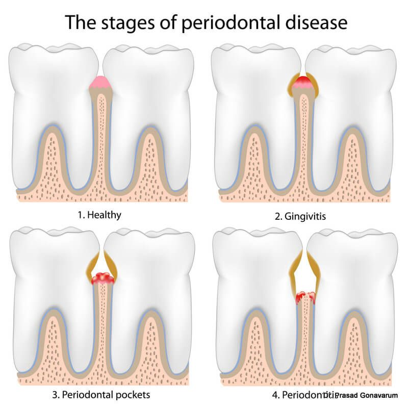 Symptoms of periodontal disease spaces developing