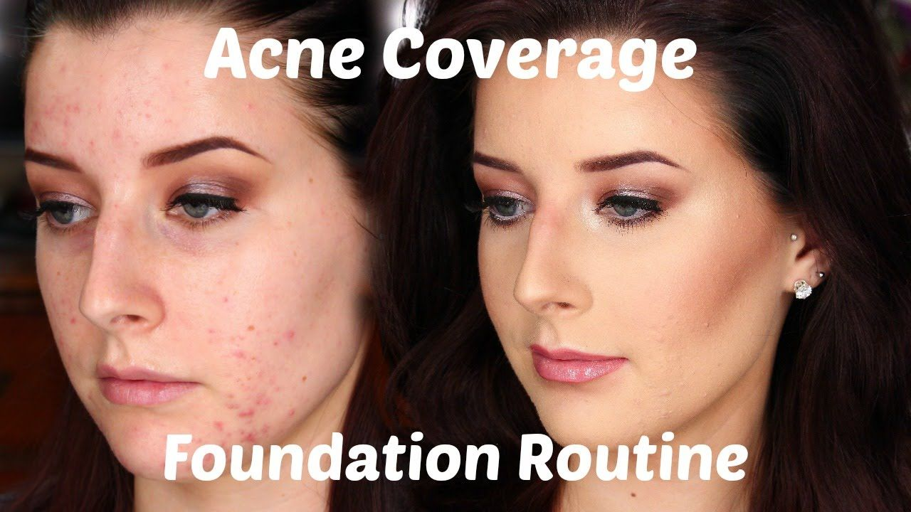 The 17 Best Foundations That Actually Help Your Acne Best Foundation For Acne Best Makeup For Acne Foundation Acne Prone Skin