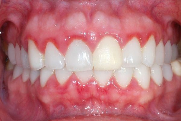 Gum inflammation, or as it is technically called, gingivitis, is