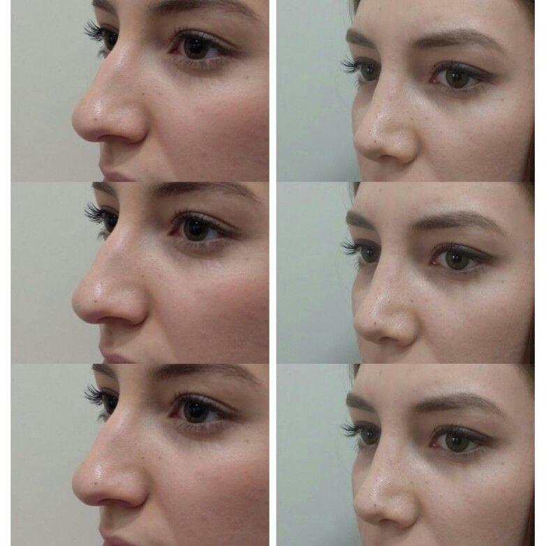 Functional rhinoplasty beauty Pinterest Rhinoplasty, Nose - plastic surgery consultant sample resume