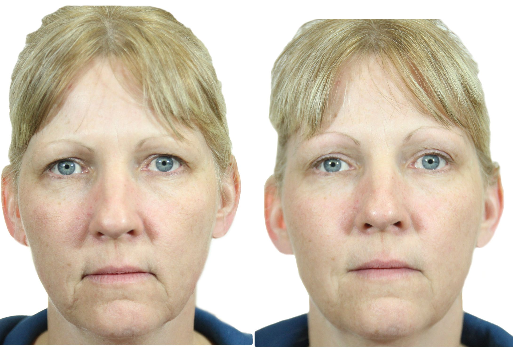 Face gymnastics after 40: golden exercises that will help to prolong youth