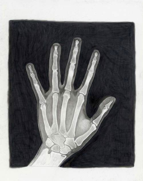 A Lovely Penciled Artwork Aceo Hand Xray Small Art Print 2 5 X 3 5 By Penciledbynicole Xray Art Small Art Prints Art Prints