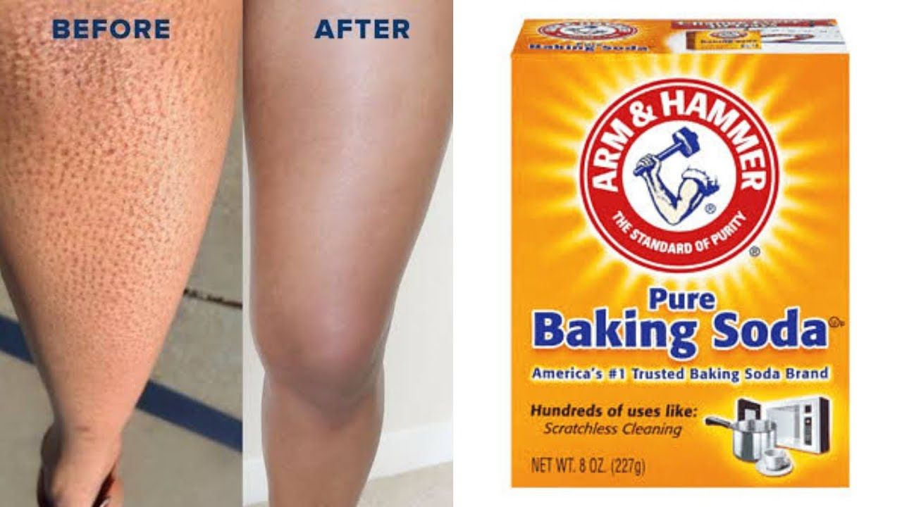 How To Get Rid Of Strawberry Legs On Black Skin