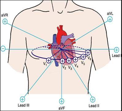 12 Lead Ecg Views Of The Heart Google Search Cardiac Nursing Medical Ultrasound Medical Textbooks