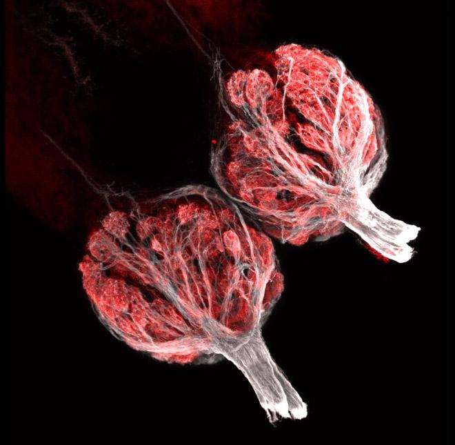 03-Braubacho de avispas (10X), profundidad de campo Estereomicroscopía