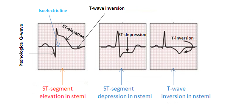 stemi vs nstemi ecg along with further explanation of difference on the site